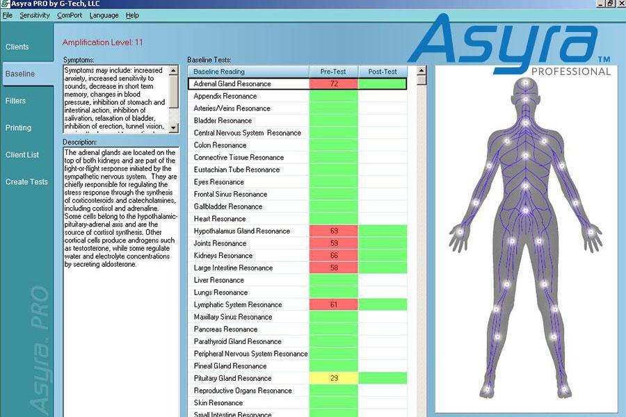 asyra machine cost